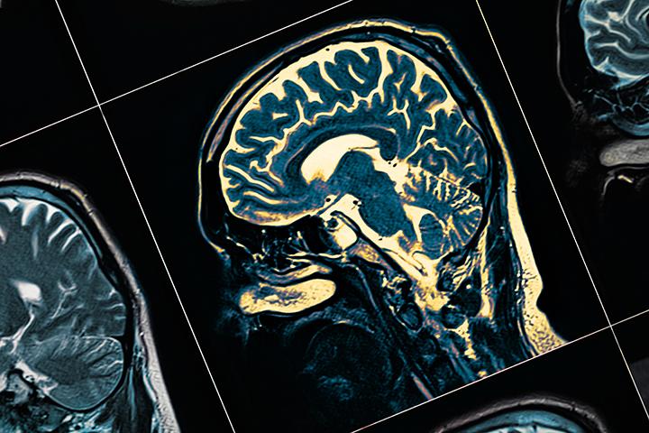 モラハラ夫が嘘つきなのは脳の仕組みによるものだった